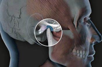 Tratamento para dores nas costas e ATM