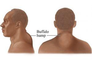 Corcunda abaixo do pescoço