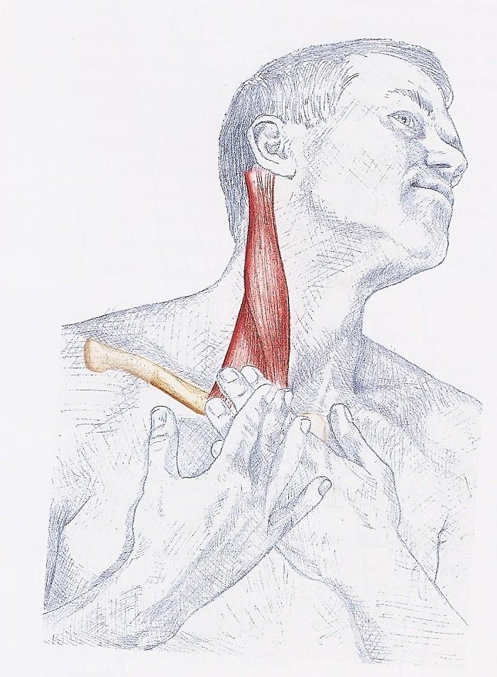 Torcicolo pescoço